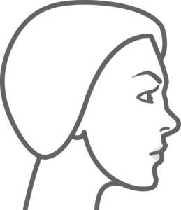 Nose Augmentation with Fillers Step 1